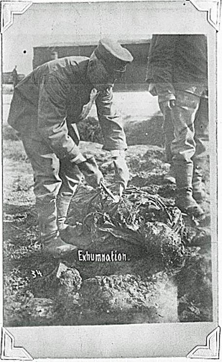 WW1 Exhumnation of human remains